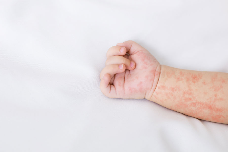 CBD oil for psoriasis